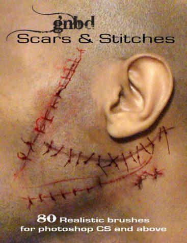 GNBD Scars & Stitches